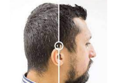 man grey hair to white hair result