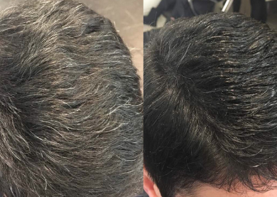 gray hair to black hair