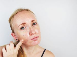 Multani mitti curing oily skin problem